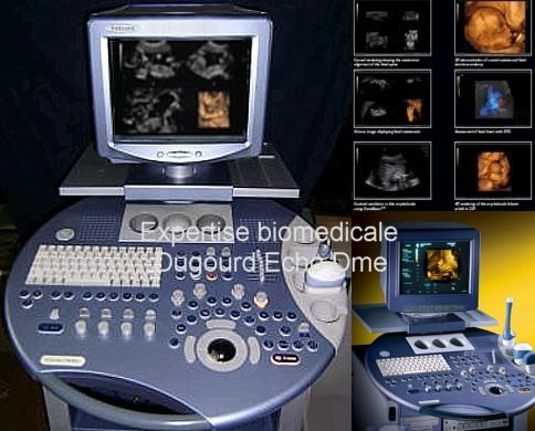 Échographe Voluson 730 pro imagerie volumique