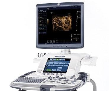 ultrasound scanner sondes probes