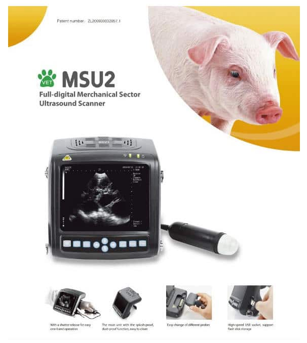 echographe MSU2