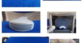 sondes lineaire convexe et endovaginale de l' echographe sonosite M turbo